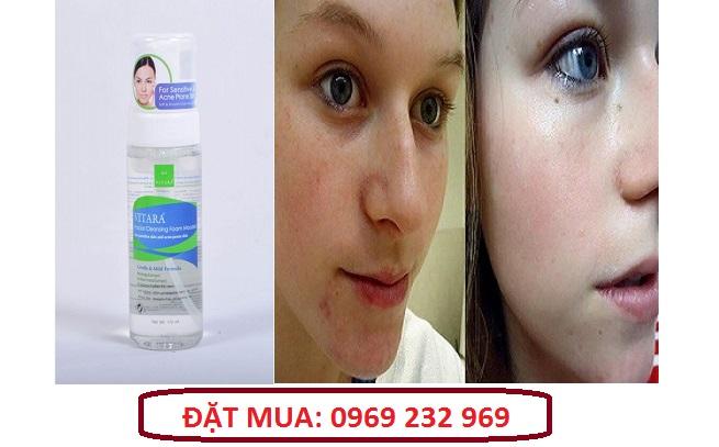Bọt rửa mặt làm sạch da Vitara Facial Cleansing Foam Mousse