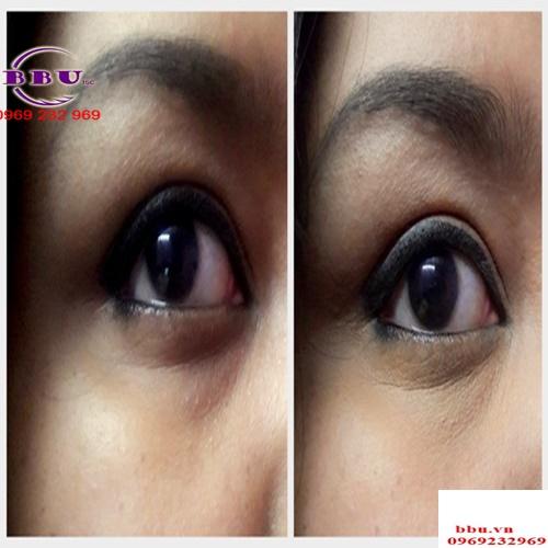 Kem dưỡng mắt Clinique All About Eyes 5ml