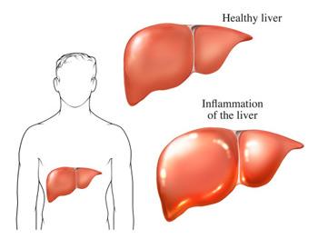 Lợi ích của mát gan giải độc