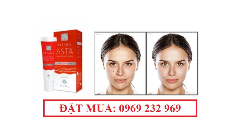 Serum ngăn trẻ hóa da ngăn ngừa lão hóa VITARA ASTA SKIN PERFECT SERUM
