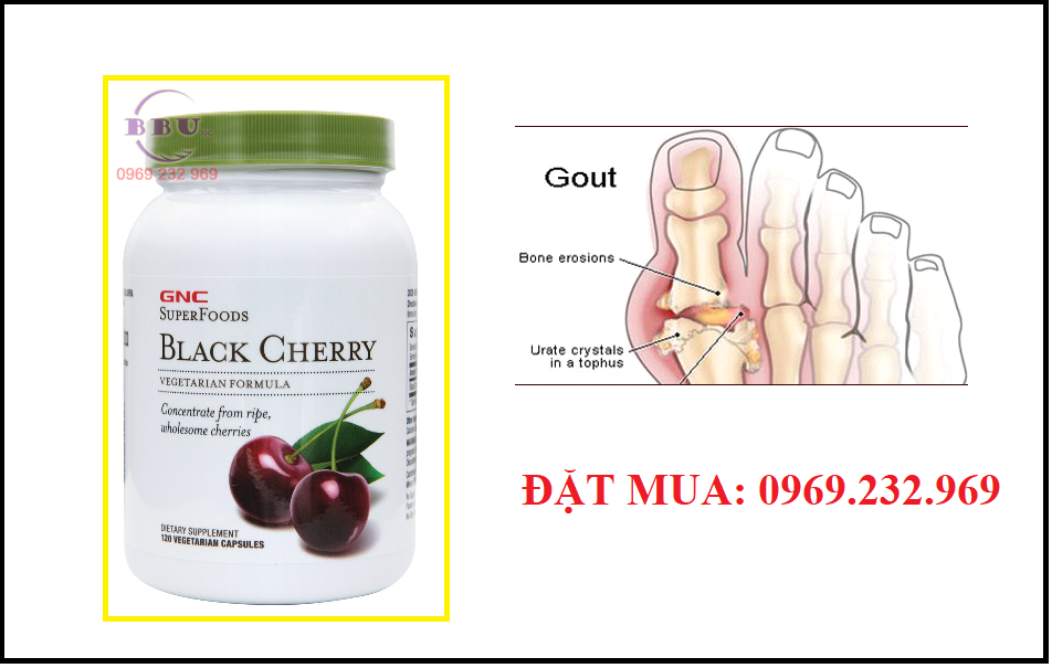 Thuốc điều trị bệnh gout gnc super foods black cherry