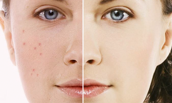 Kem trị mụn Acne Spot Treatment Neutrogena