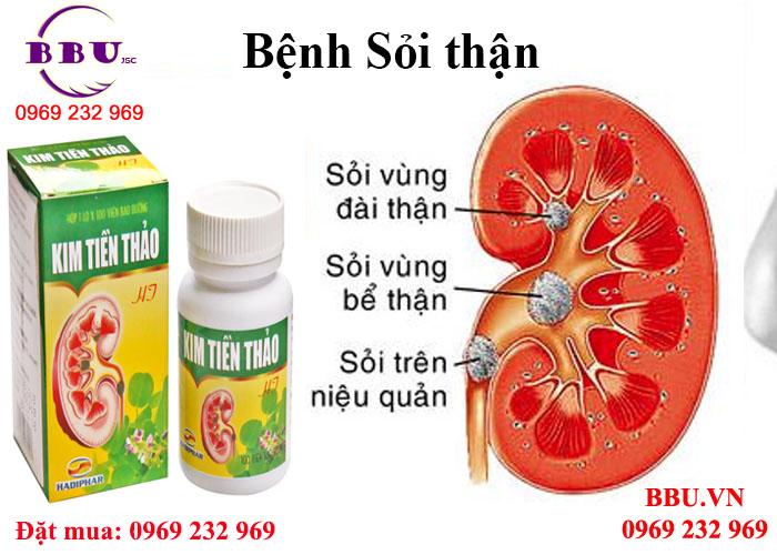 Công dụng thuốc điều trị sỏi thận hiệu quả Kim Tiền Thảo HT