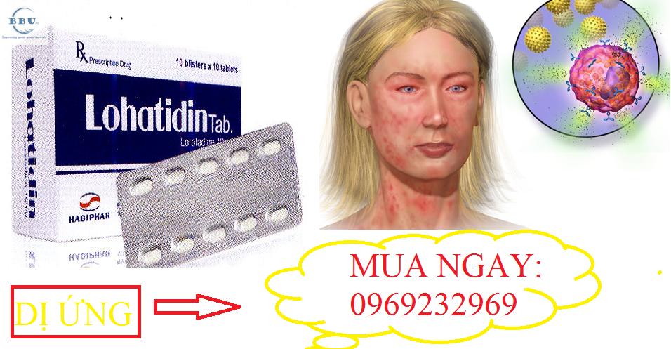 Bỏ sỉ Lohatidin kháng histamin trị viêm rẻ nhất