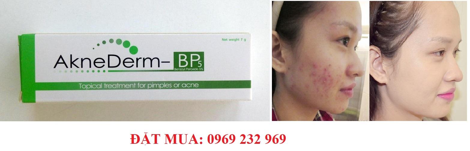 Thuốc điều trị mụn mũ sưng viêm, mụn đầu trắng AKNEDERM - BP 5%