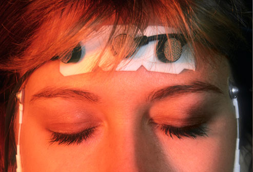 14 Phương pháp điều trị không thuốc cho đau nửa đầu