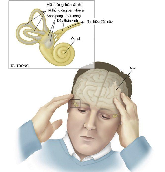 Bệnh rối loạn tiền đình là gì? Cách chữa bệnh rối loạn tiền đình