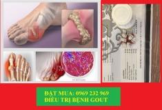 Linsen double caulis plus điều trị Gút ( Gout ) - Malaysia